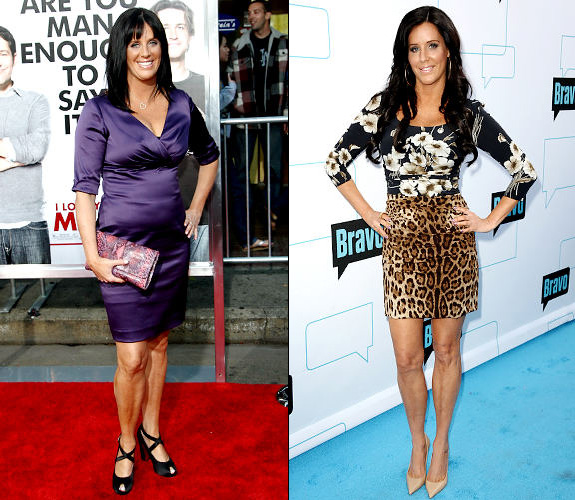 Patti before weight loss (on the left) and after (on the right)